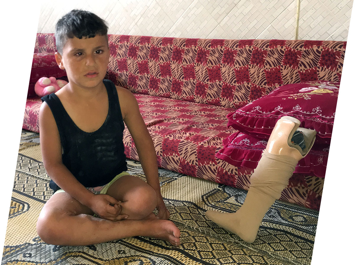 Interpal - Pledge for Palestine - Artificial Limbs